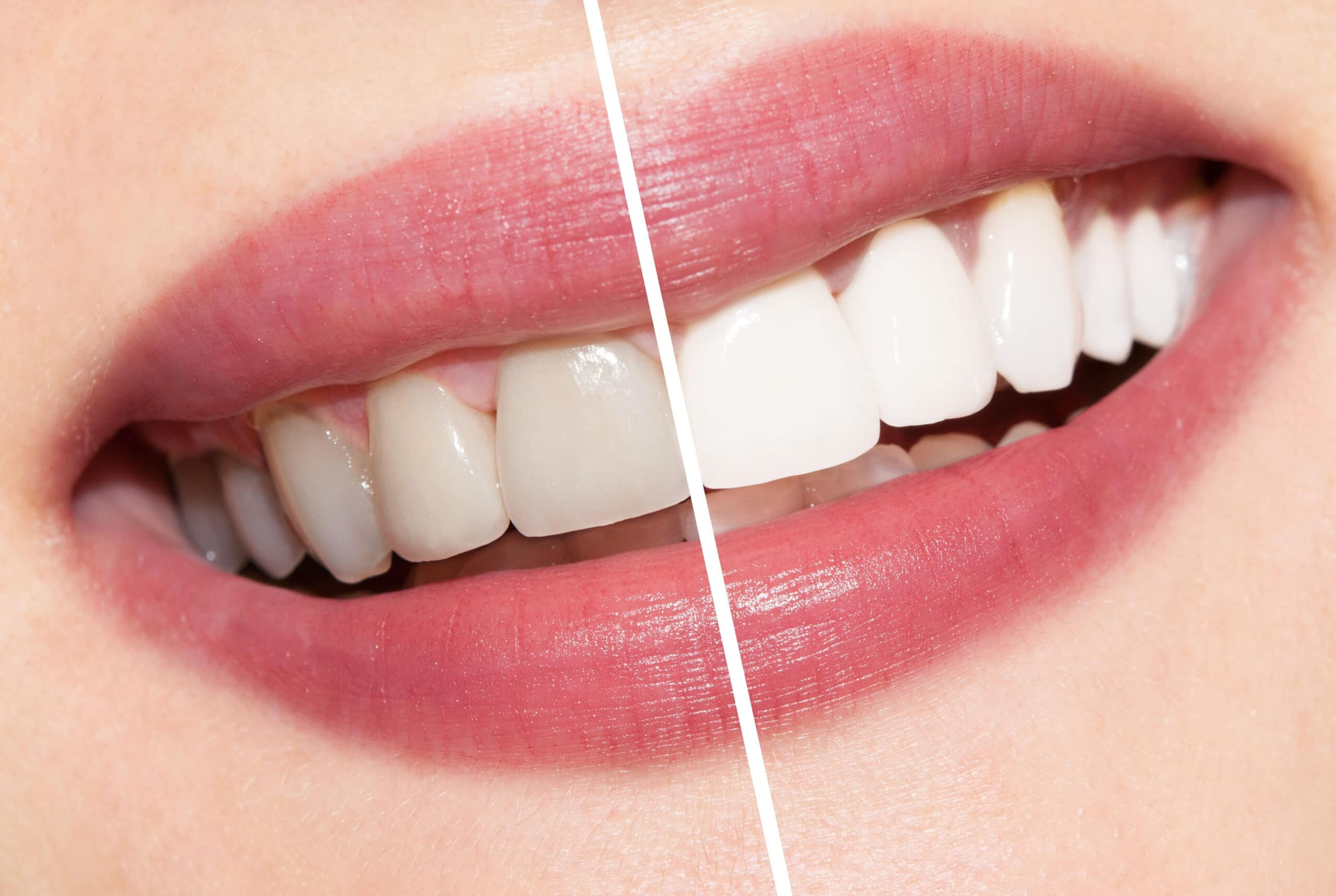 Tooth Whitening Procedures And Advantages